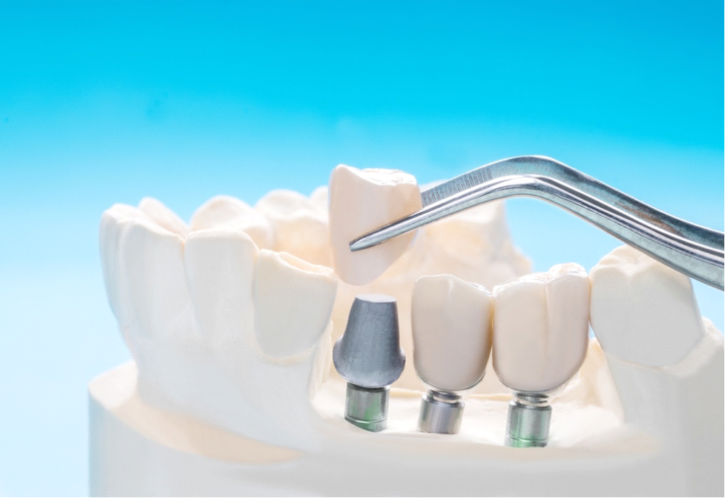 implant dentistry in Chattanooga